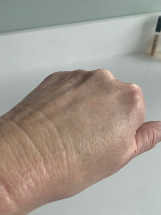 my hand after the cream